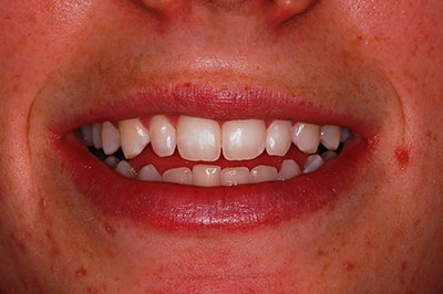 Dentist in Golden Before Image